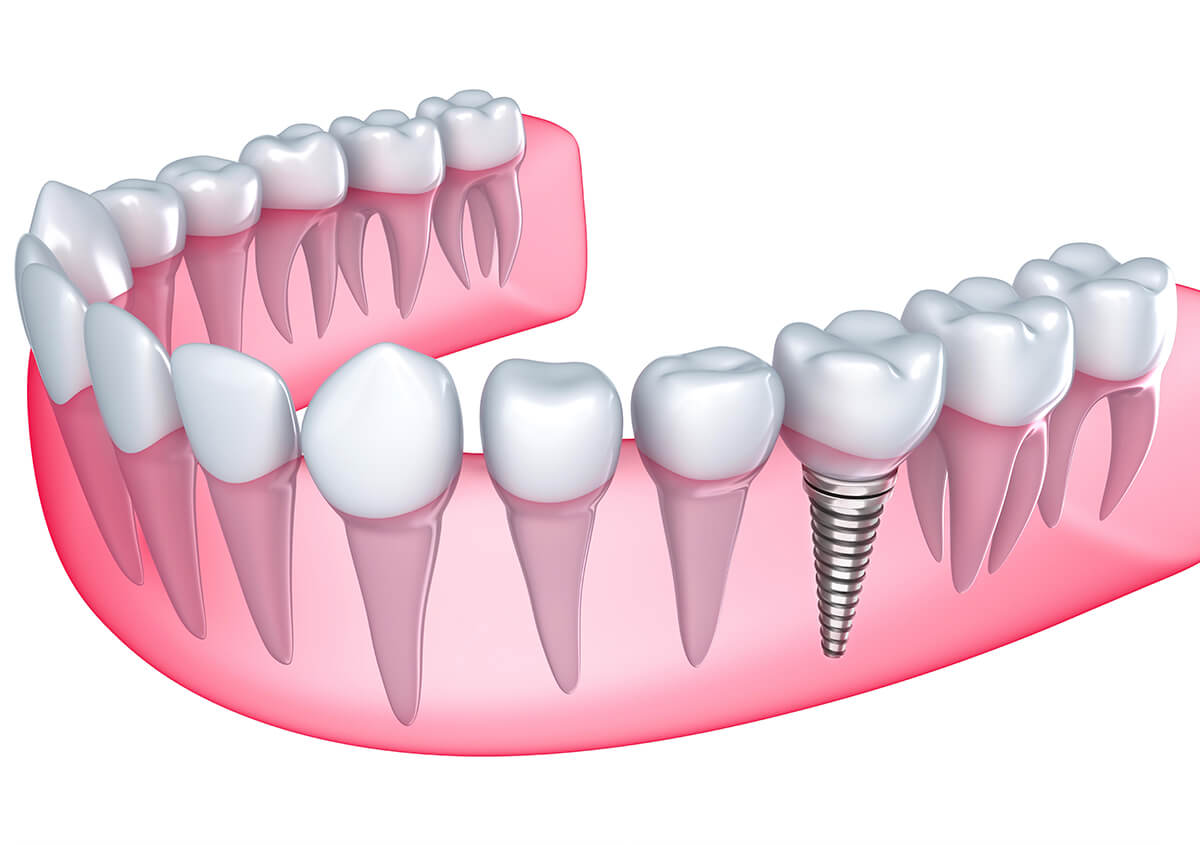 Implants for Teeth at Scola Family Dentistry in Murrieta CA Area